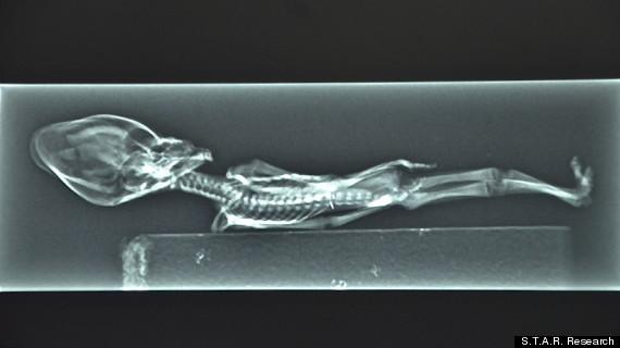 petit squelette humain