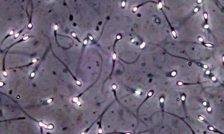 Spermatozoides vus au microscope